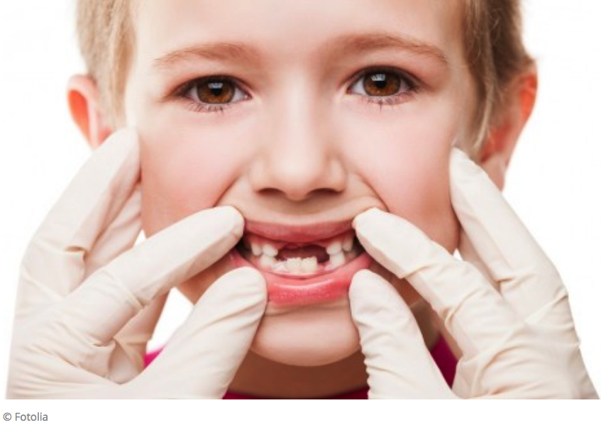 Early exposure to bisphenol A might damage the enamel of teeth.